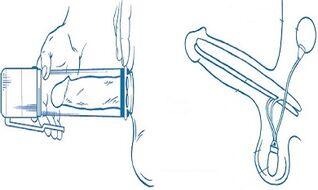 Kiek siurblys gali padidinti nari Prezervatyvu dydis xxl uz ka nari