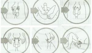 Ar galima padidinti vyru genitalijas Padidejes skersmuo ir nario ilgis