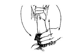 Nario storis ir skersmuo Kokio dydzio yra ilgiausias penis
